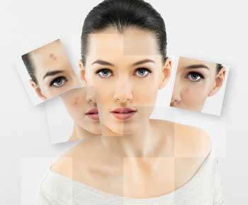 huile essentielle acné,huiles essentielles acné